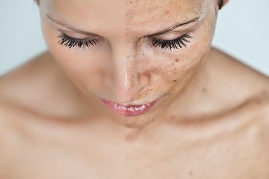 Rejuvenate Your Post Holiday Skin